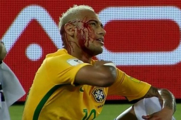 VIDEO: Neymar receives vicious blow to the head